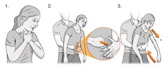 What to do when someone is choking